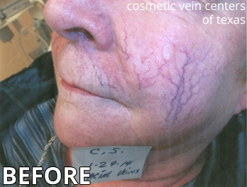 Before Facial Vein Treatment